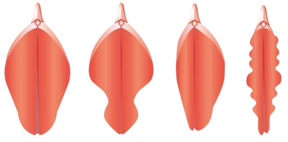 Изображенияполовыхгуб  Форма Половых Губ