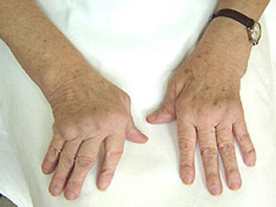 глина лечение артрита артрита